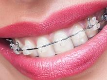 Брекеты на зубы - цены на установку, поставить зубные брекеты в Туле